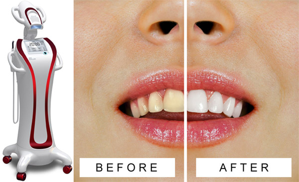 TEETH-WHITENING2