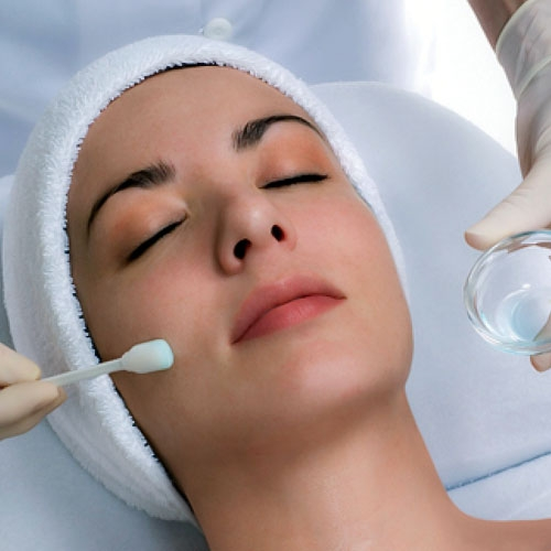 Chemical-Peel-image