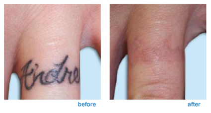 tattoo-laser