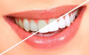 teeth whiteming 1