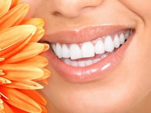 teeth whiteming 2